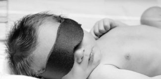 Prolonged Jaundice in Newborns - Causes, Symptoms, Investigation, And Treatment